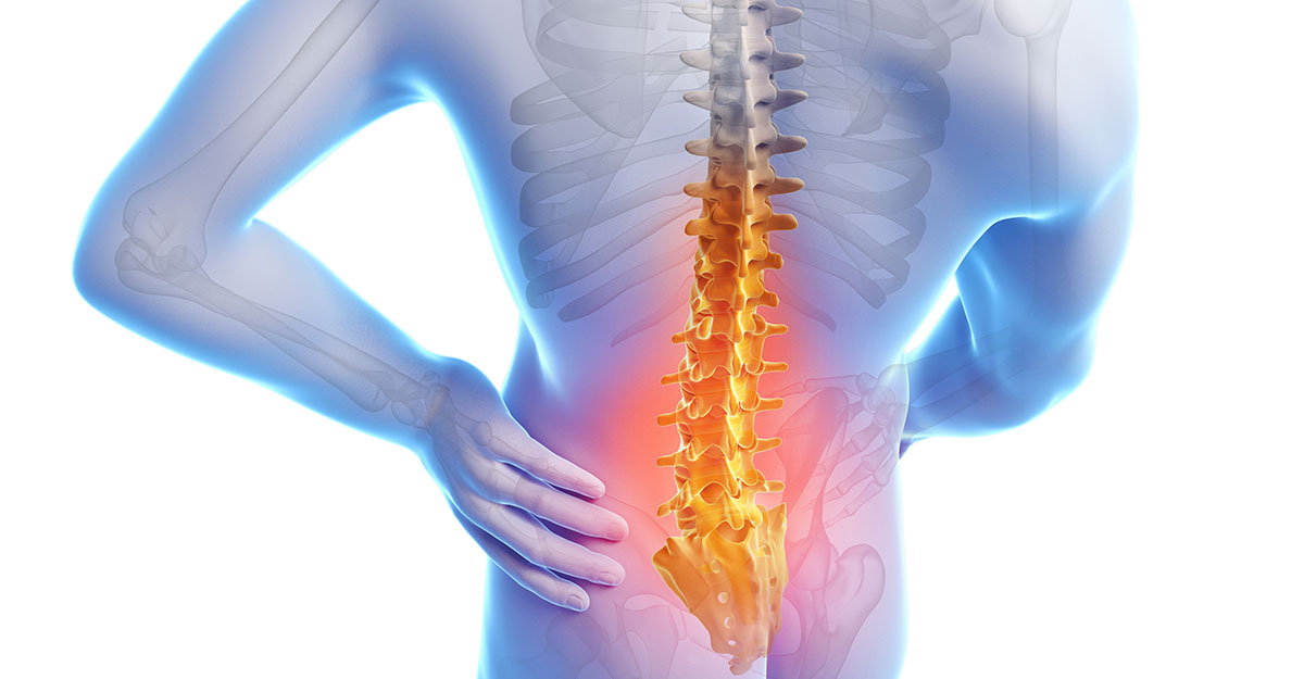 Gresham, OR back pain treatment by Dr. Ramsey