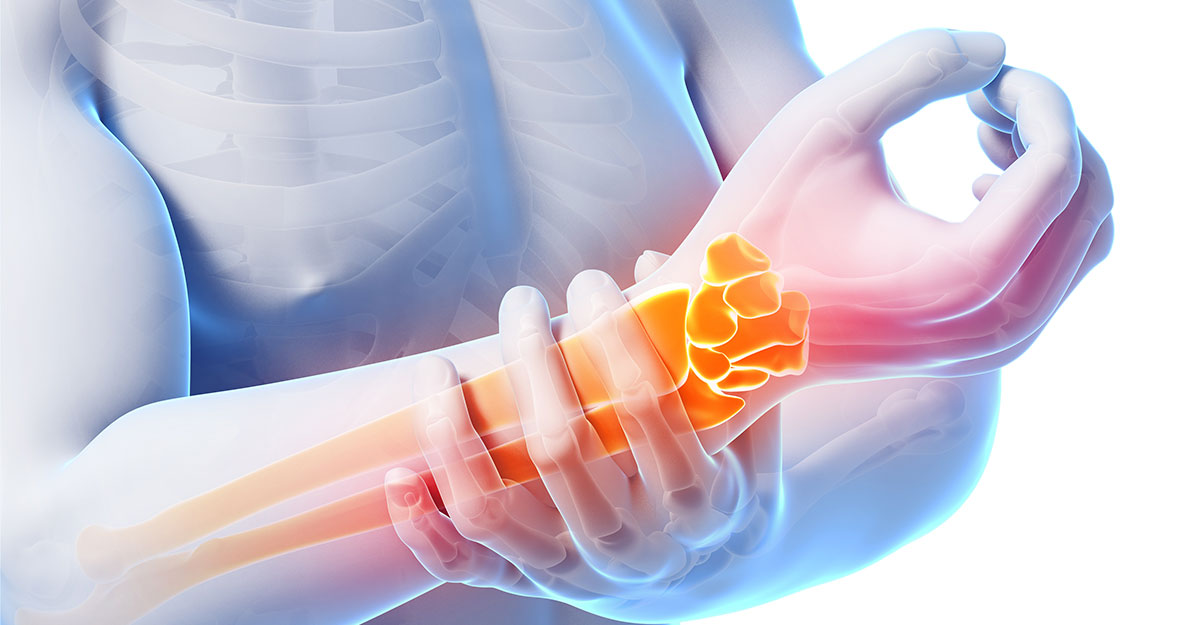 Gresham, OR natural carpal tunnel treatment